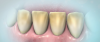 Figure 1. Stained teeth prior to whitening treatment.