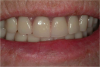 Figure 28. After denture is seated, occlusion is confirmed.