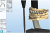 Fig 4. A digital articulator can be utilized to visualize functional and parafunctional interactions.