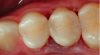 Figure 9. The identical height of the restored marginal ridge as compared to adjacent tooth due to the careful placement of the matrix.